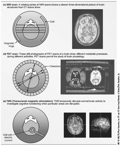 Structures and Functions of the Brain
