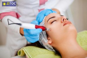 Laser Hair Removal, 12 Benefits of Laser Hair Removal